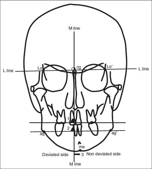 Soft And Hard Tissue Changes After Bimaxillary Surgery In Japanese