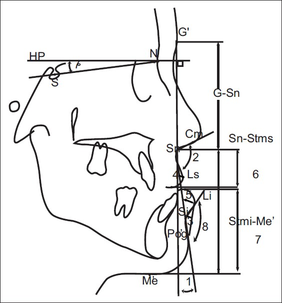 Figure 4: Soft tissue measurements: 1. Facial convexity angle, 2. Nasolabial angle, 3. Mentolabial sulcus depth, 4. Upper lip protrusion, 5. Lower lip protrusion, 6. Upper lip length, 7. Lower lip length, 8. Inferior sulcus angle