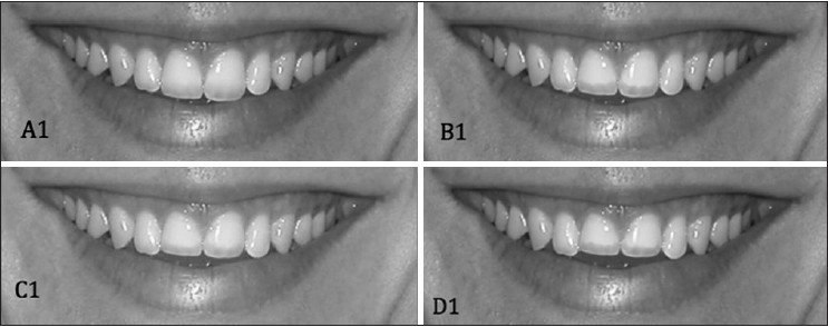 Figure 2: Changes in maxillary central incisor crown length