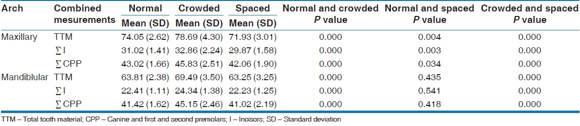 Table 4: Comparison of the mean values of the sum of the total tooth material (ΣTTM), the sum of the four incisors (ΣI) and the sum of the canine, first, and second premolars (ΣCPP) between normal and crowded groups, normal and spaced groups as well as between crowded and spaced groups