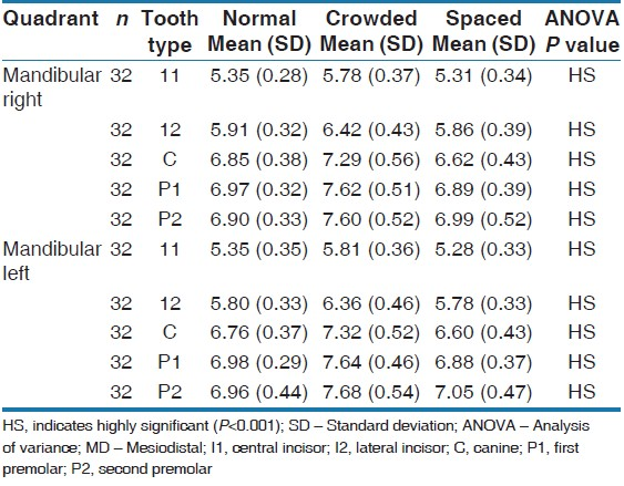 Table 6: Comparison of the mean values of the MD width of teeth (SD) in the mandibular arch as detected by ANOVA