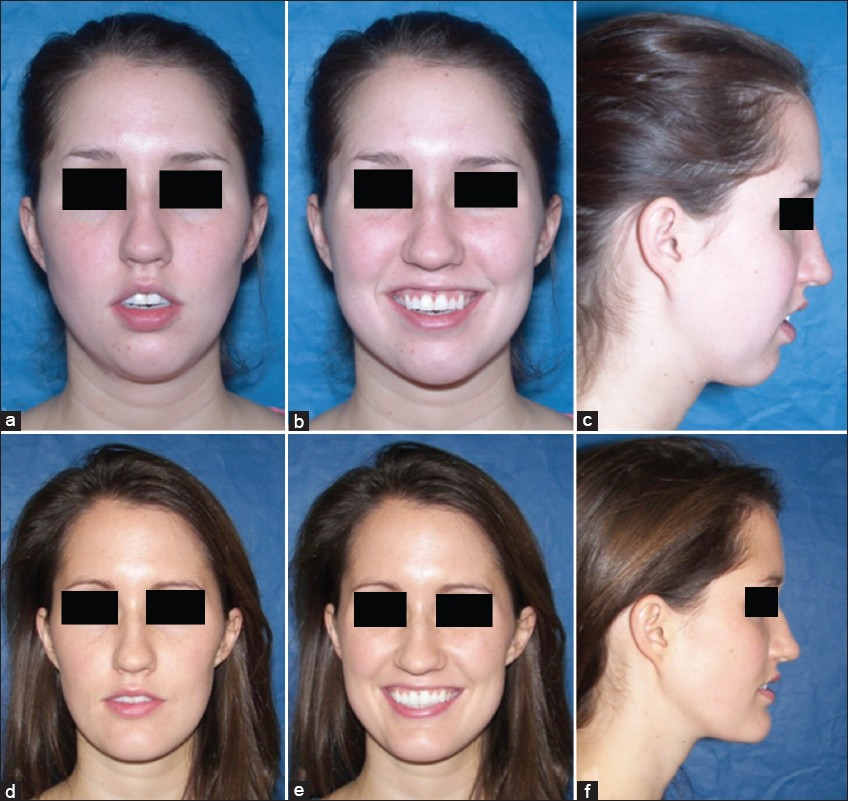 Can orthodontic relapse be blamed on the temporomandibular joint ...