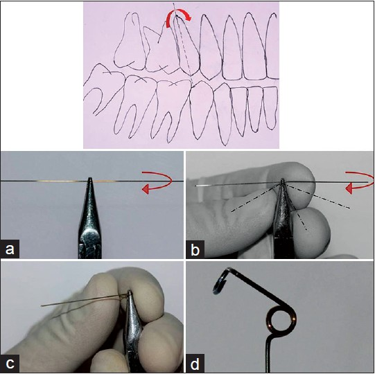 Figure 1: Step by step procedure to fabricate clockwise type uprighting spring. (a) Hold the Australian wire in 139 pliers showing required direction of the bend; (b) Bend the right plank of wire in a clockwise direction, keeping this end under left plank; (c) Make two and half turns and (d) Complete the residual wire bending and final clockwise type uprighting spring
