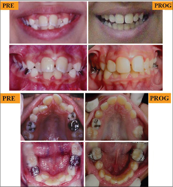 Modified Serial Extraction Treatment In A Patient With Congenitally Missing Lower Second Premolars Al Hummayani Fm J Orthodont Sci