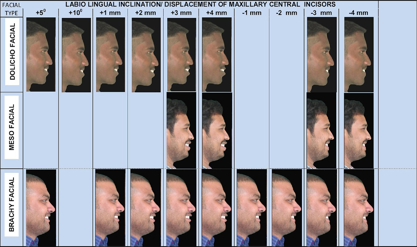 Figure 7: Unharmonious smiling profiles of three different facial patterns