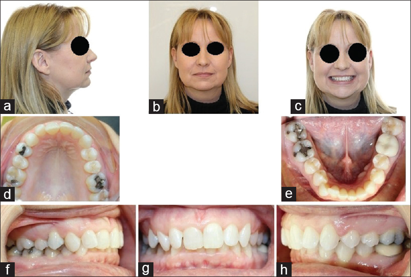 Figure 1: Facial and intraoral photographs of the patient. (a) facial profile, (b) facial front view, (c) facial front smiling, (d) upper arch, (e) lower arch, (f) intraoral right lateral view, (g) intraoral frontal view, (h) intraoral left lateral view