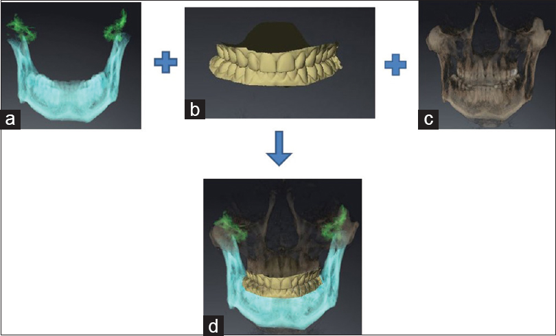 The Fabrication Of A Customized Occlusal Splint Based On