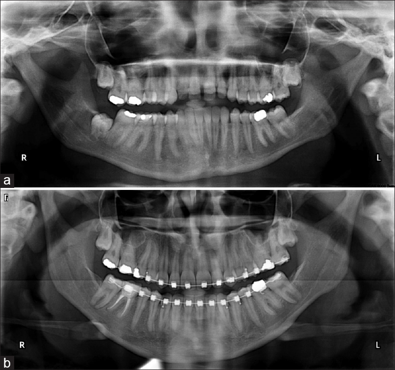Figure 5: (a) Initial panoramic radiograph. (b) Near treatment completion panoramic radiograph from the final intraoral records