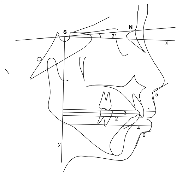 Figure 2: Horizontal position of the upper and lower incisor tips as well as lips. 1, most anterior point of upper lip to y axis; 2, upper incisor tip-y axis; 3, mandibular incisor tip-y axis; 4, most anterior point of lower point-axis; 5, nasolabial angle; 6, mentolabial angle