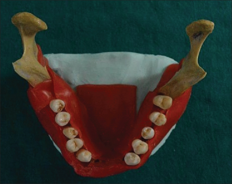 Figure 2: Extracted teeth mounted on the human mandible