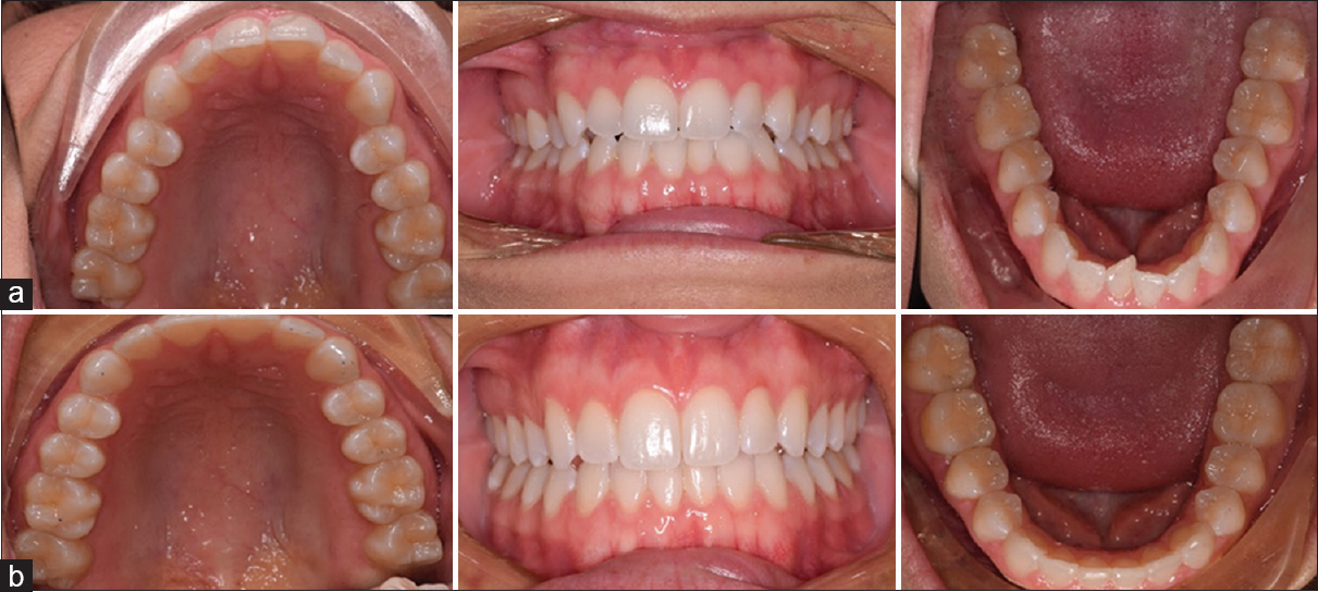 Figure 5: A patient from the HFV group with class I malocclusion (a) before and (b) after treatment with Invisalign clear aligners. Total treatment with 34 aligners was 175 days. (Average aligner change of 5.14 days)