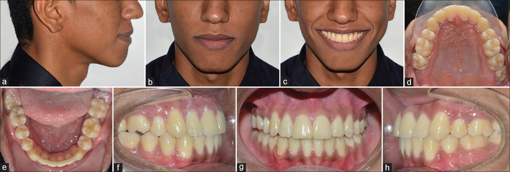 Figure 8: (a-h) Posttreatment extra-oral and intra-oral photographs