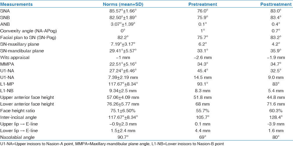 Table 1: Pretreatment and posttreatment cephalometric analysis